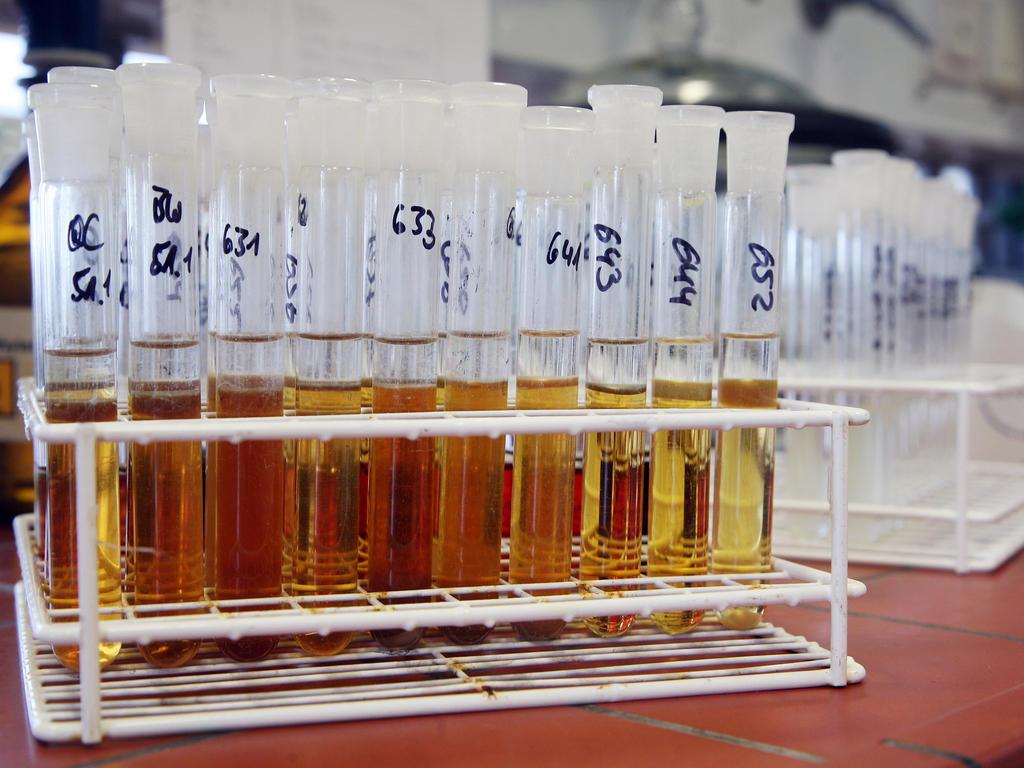 wm 187 news 187 costa ricas dopingproben negativ